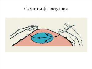 Флуктуация в различных сферах деятельности человека и в медицине. Абсцесс (клиническая картина) Симптом флюктуации