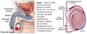 Отек мошонки: причины, симптомы, лечение. Как снять воспалительные процессы мошонки методами традиционной и народной медицины