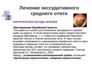 Экссудативный отит (Острый и хронический катар среднего уха). Катар среднего уха. Причины. Симптомы. Диагностика. Лечение Хронический катар среднего уха: симптомы