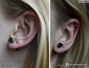 Проколотые уши чтобы быстро зажили. Как производить обработку ушей после прокола