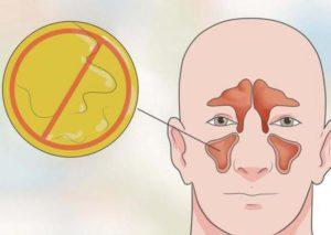 Боль внутри носа причины и лечение. Причины и лечение болей в носу внутри, снаружи, кончика при нажатии или прикосновении