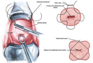 Наложение шва на шейку матки при истмико-цервикальной недостаточности. Ушивание шейки матки — путь к благополучной беременности