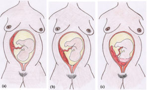 Локализация плаценты передняя стенка матки высоко. Расположение плаценты по передней и задней стенке матки