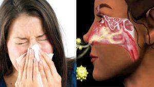 Щекочет в носу чем лечить. Щекочет в носу и текут сопли. К чему чешется нос