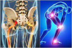 Препараты при воспалении нервных окончаний. Воспаление нервных окончаний: симптомы и виды