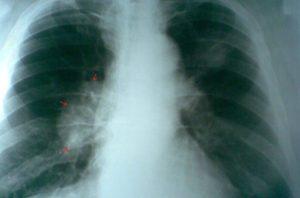 От чего бывает затемнение в легких. Темные пятна на легких или как лечить туберкулез