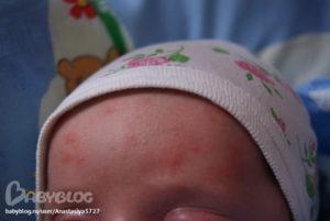 Лавровый лист при раздражении и аллергии у грудничка. Купание новорожденного в лавровом листе