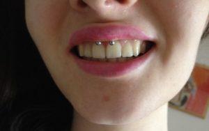 Виды пирсинга уздечки под языком — этапы процедуры, противопоказания и уход за местом прокола. Как прокалывают уздечку верхней губы