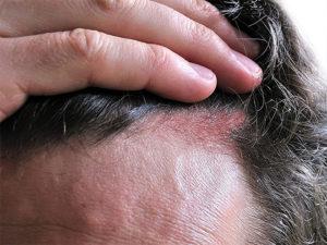 Женщина с гниющей головой. Плохо пахнет кожа головы и волосы: основные причины и необходимое лечение. Основные симптомы проявления недуга