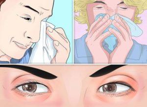 Что делать, если чешется в носу и чиханье? Чешется в носу и чихаю — что делать