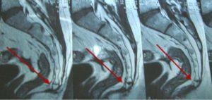 Что показывает результат МРТ-исследования копчика? Мрт крестца и копчика Что можно увидеть при проведении этой диагностики