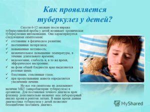 Туберкулез у новорожденных. Как распознать первые признаки туберкулеза у детей