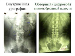Обзорная и внутривенная урография. Показания и противопоказания к обзорной урографии