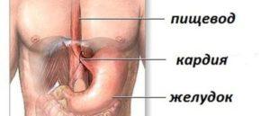 Что это такое, недостаточность кардии? Розетка кардии смыкается не полностью: что делать? Неполное смыкание кардии лечение