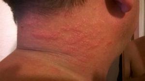 Сзади на шее покраснела кожа и чешется. Покраснение на шее и зуд — определение причин и варианты лечения