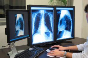 Что пить и есть после рентгена. Медикаментозные препараты, которые выводят радиацию. Рентгенологическое исследование. Польза или вред
