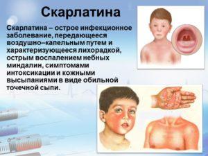 Как проявляется болезнь скарлатина у детей. Скарлатина у детей: формы заболевания. Сколько держится температура