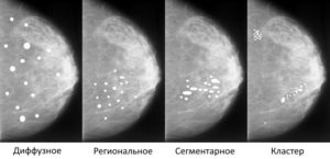 Кальцинаты в молочной железе. Это признак рака или нет. Кальцинаты у женщины в грудной железе - причины и лечение Единичные кальцинаты в молочной железе на маммографии