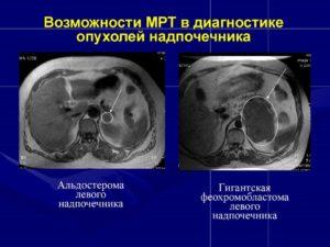 Кт надпочечников подготовка к исследованию. Какой из методов обследования лучше для надпочечников — КТ или МРТ. Что лучше, МРТ или КТ надпочечников