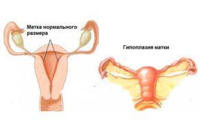 Детская матка: причины, лечение и последствия. Детская матка лечение