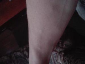 Уплотнение на вене на ноге: чем это грозит? Почему возникают шишки на венах ног