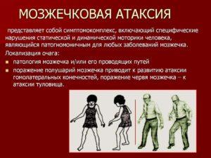 Метод френкеля, упражнения при атаксии и рассеянном склерозе. Мозжечковая атаксия Лфк при мозжечковой атаксии