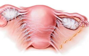 Спайки после удаления матки и яичников симптомы. Лекарство от спаек после операции