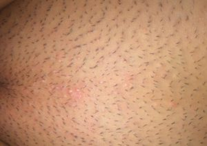 Причины и борьба с зудом у девочек в интимной зоне. Аллергия в интимной зоне у ребенка покраснение зуд