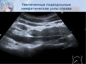 Общие подвздошные лимфатические узлы. Метастазы в лимфоузлах. Диагностика лимфаденопатии лимфоузла