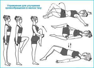Застой в малом тазу у женщин причины. Физическая активность для нормализации тазового кровообращения. Консервативные методы лечения венозного застоя крови в малом тазу