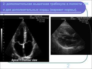 Малая аномалия сердца — трабекула левого желудочка: признаки и лечение. Дополнительная хорда в полости левого желудочка: причины и лечение