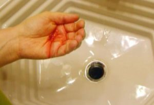 Кровь изо рта: причины, лечение, неотложная помощь. Почему появляется кровь в слюне