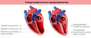 Что такое гипертрофическая кардиомиопатия? Гипертрофия мжп сердца что это