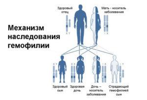 Бывает ли гемофилия у женщин. Особенности ведения больных гемофилией при хирургических вмешательствах. Гемофилия и прививки