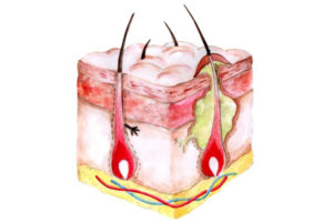 Вскочил фурункул на груди – что это такое и как бороться с проблемой. Фурункул на грудях: описание, причины появления, симптомы, необходимое лечение и профилактика заболевания