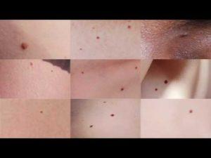 Возможные причины появления и особенности видов родинок на половых губах. Значение родинок на половых губах