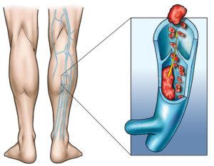 Что такое флеботромбоз и чем он опасен? Флеботромбоз — что это, какие симптомы у каждого вида патологии