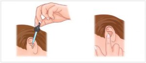 Как правильно закапать ушные капли. Как закапывать ушные капли ребенку. Как правильно капать в уши