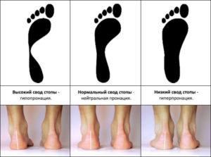 Что такое гипопронация и гиперпронация: виды пронации стопы