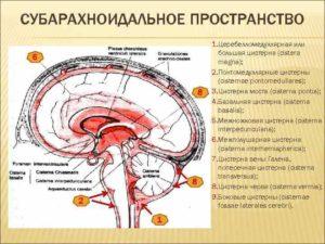 Кистовидное расширение субарахноидального пространства мозжечка. Что представляет собой субарахноидальное пространство