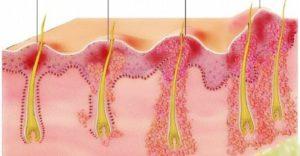 Чирей внутри губы. Как лечить фурункулы на половых губах на разных стадиях болезни