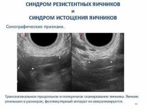 Синдром истощения яичников. Что такое кистозное изменение яичников причины симптомы его лечение