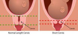Почему шейка матки становится короткой во время беременности, чем опасно укорочение, как ее удлинить? Удлиненная шейка матки. Медитация для раскрытия шейки матки