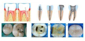 На какой зуб можно поставить штифт. В каких случаях ставят штифт в зуб: что это такое, достоинства и недостатки, виды изделий. Перспективно ли наращивание на штифт