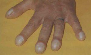 Часовые стекла и барабанные палочки синдром. Пальцы Гиппократа: клиническое значение