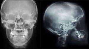Рентгенография черепа: показания и особенности проведения исследования. Рентген головы: что показывает Обзорная рентгенография черепа