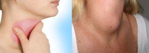 Воспаление хрящей гортани. Хондроперихондрит гортани – что это такое? Причины, симптомы, лечение Воспаление щитовидного хряща