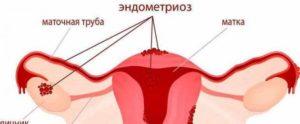 Кровотечение через неделю после месячных без боли. Идет кровь после менструации