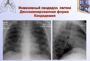 Бронхолегочный кандидоз. Кандидоз легких: симптомы, диагностика, лечение, народные рецепты