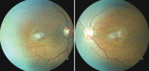 Что такое эпиретинальный фиброз глаз. Народные рецепты для лечение фиброза сетчатки глаза